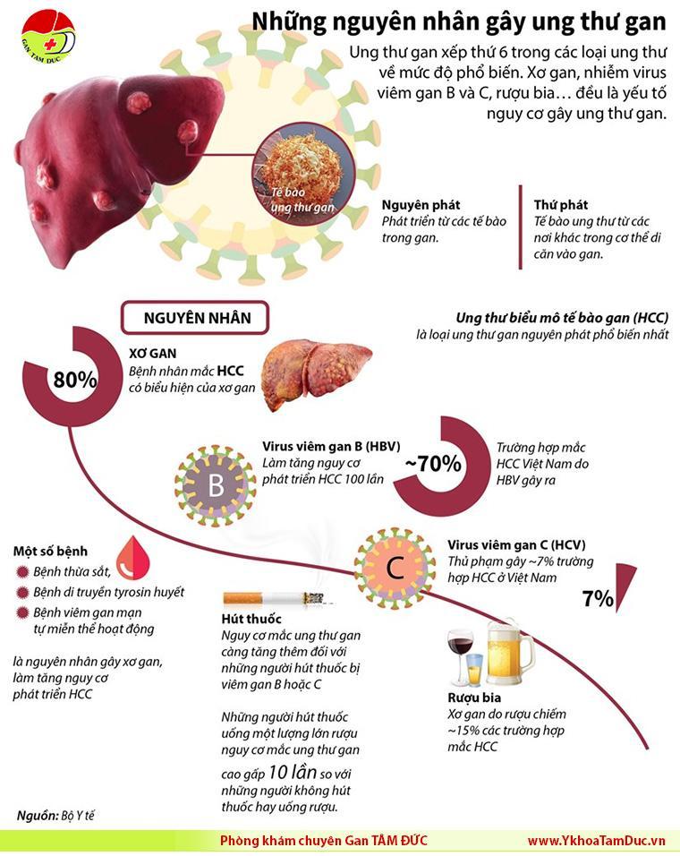 infographic nguyên nhân gây ung thư gan liver cancer